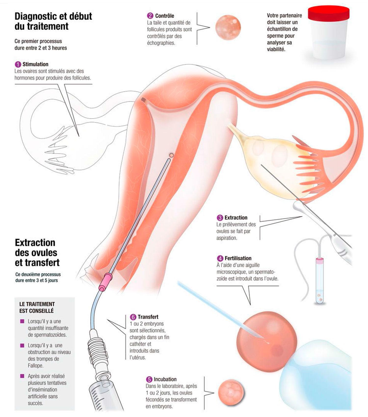 Fécondation in vitro (FIV) Avec vos ovules et le sperme de votre partenaire