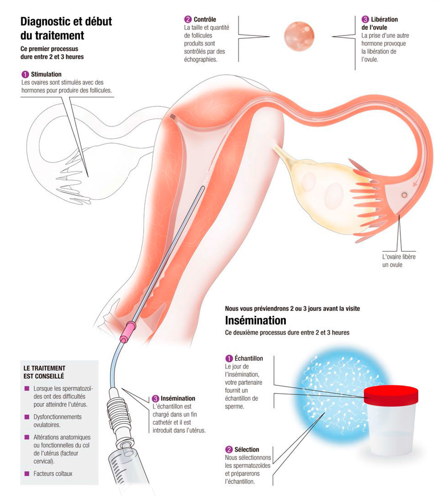 Insémination artificielle (IAC) Avec vos ovules et le sperme de votre partenaire