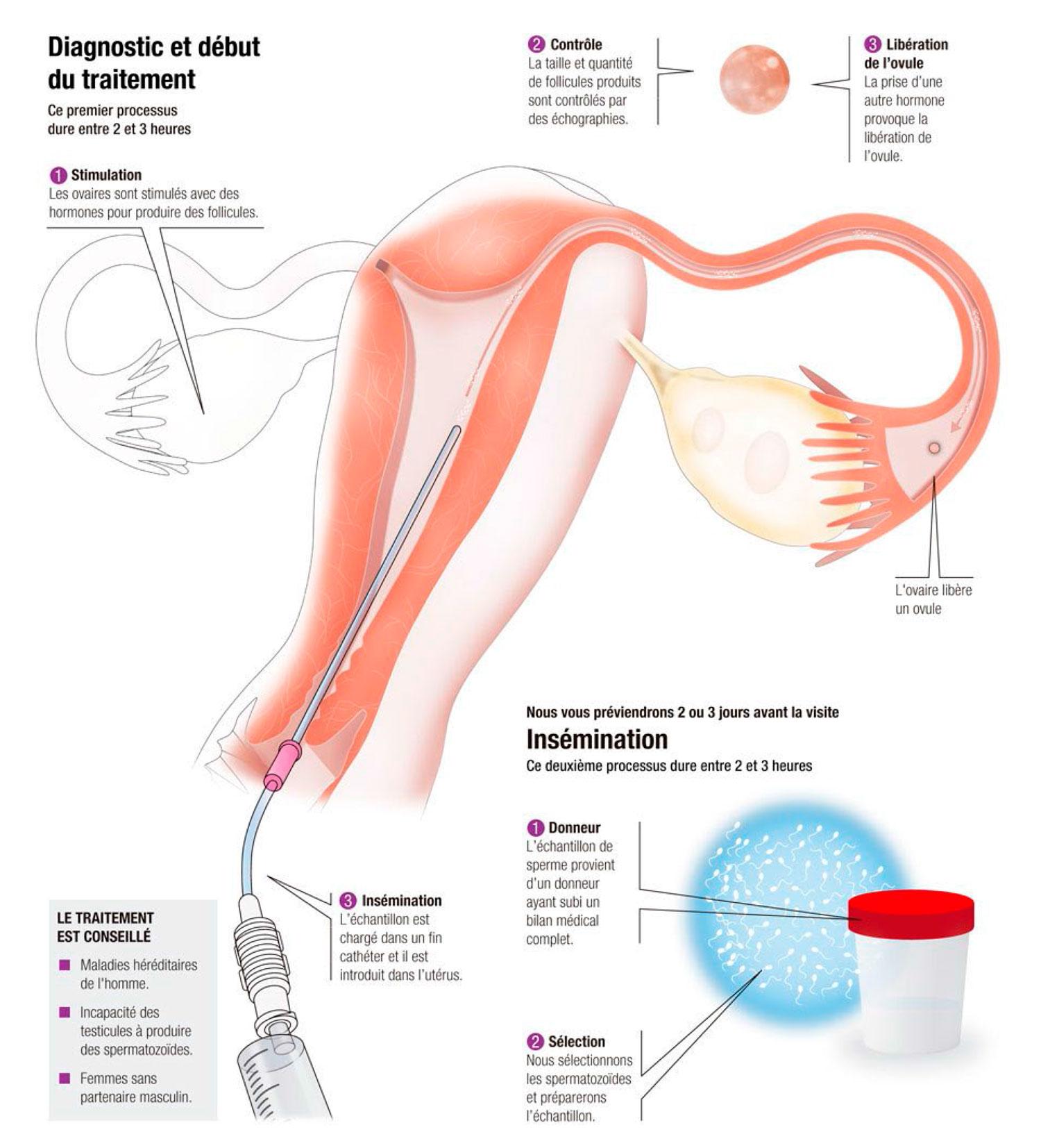 Insémination artificielle (IAD) avec don de sperme