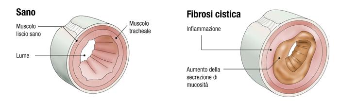 fibrosi_cistica