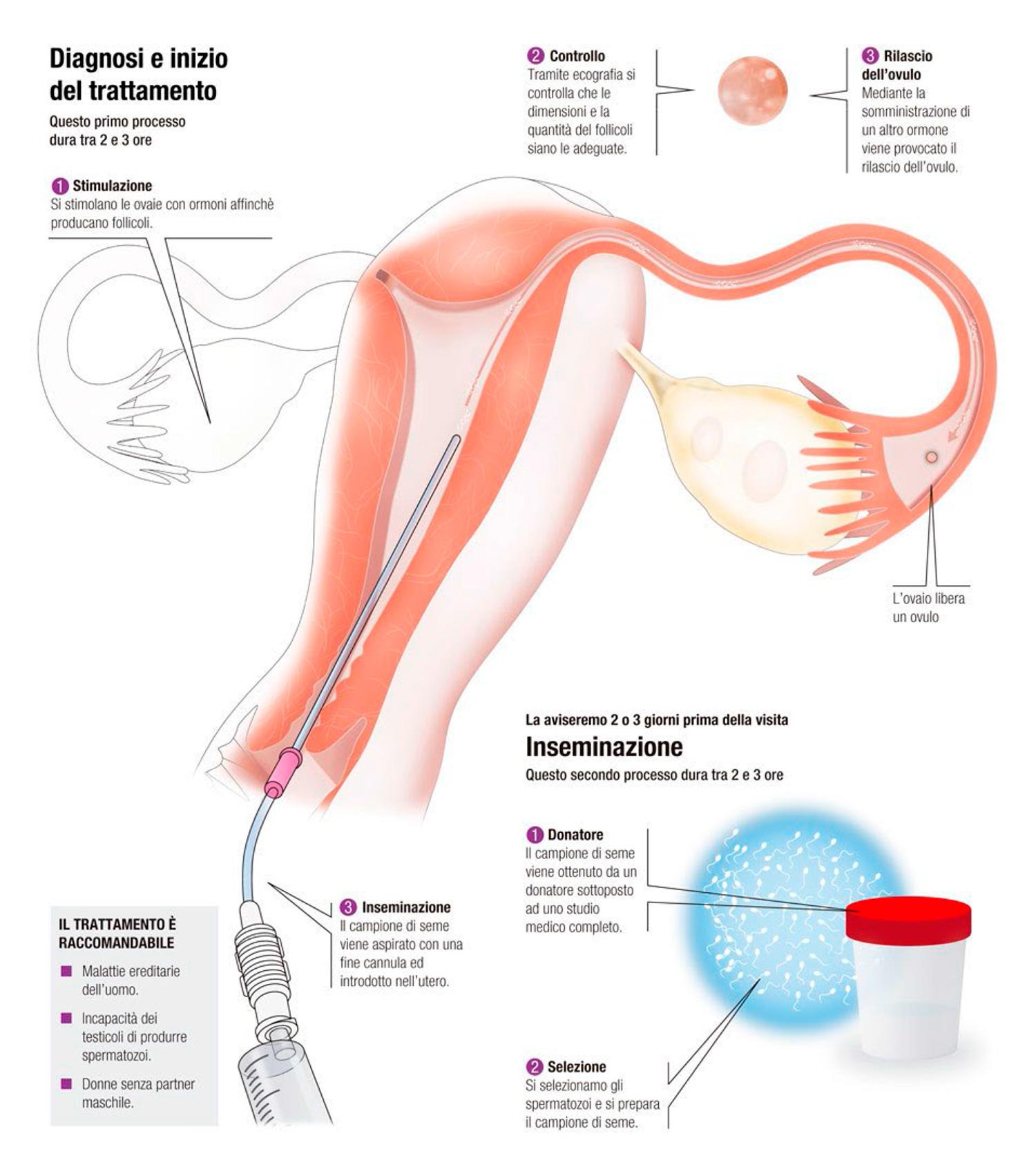 Inseminazione Artificiale con sperma di donatore