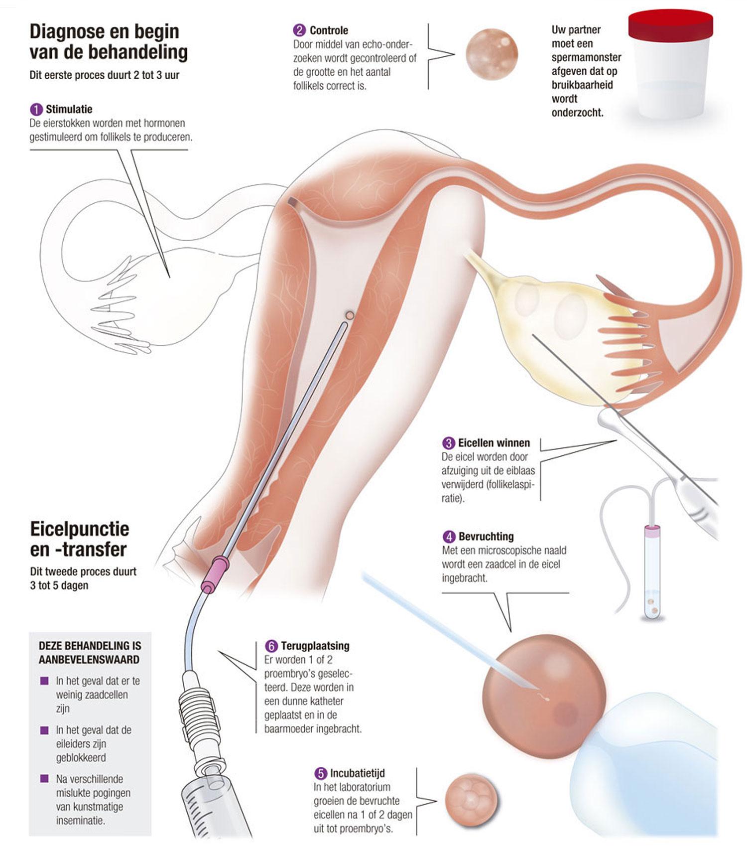 In-vitrofertilisatie met eigen eicellen en sperma van de partner
